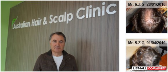 Australian Hair and Scalp Clinic Sydney
