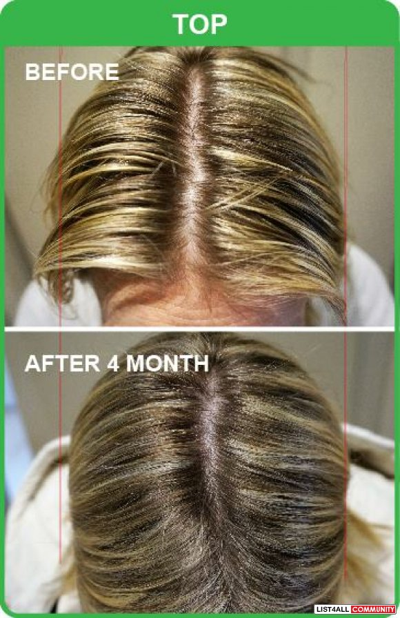 Natural and Effective Hair Loss Treatment in Adelaide