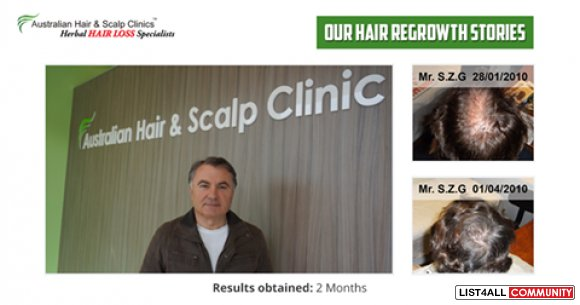 Result Oriented Hair Loss Treatment in Perth