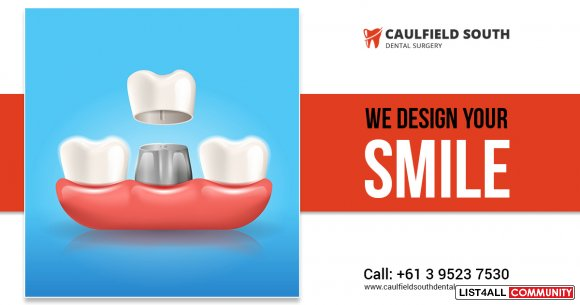 Replace Missing Teeth with Dental Implants in Caulfield South